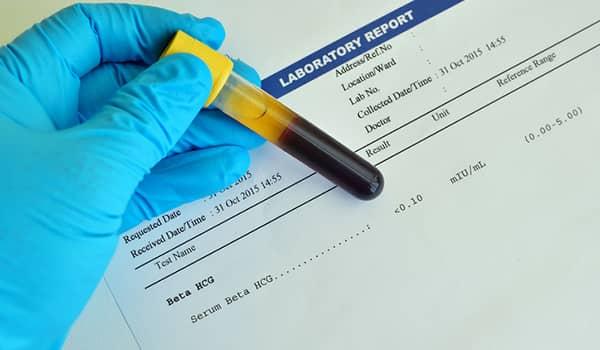 Requisitos para prueba de embarazo de sangre en México